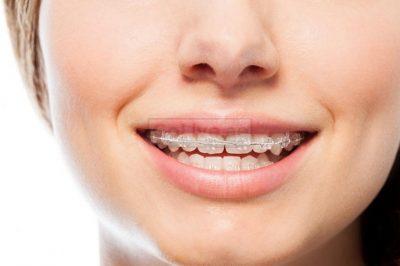 Orthodontist in Abu Dhabi