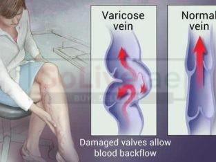 Varicose Veins Treatments
